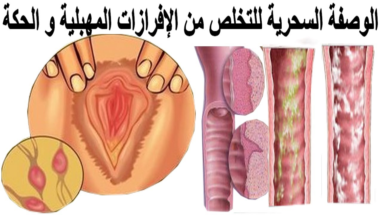 صورة على ماذا يدل كثرة الافرازات المهبلية , كثرة الافرازات المهبلية