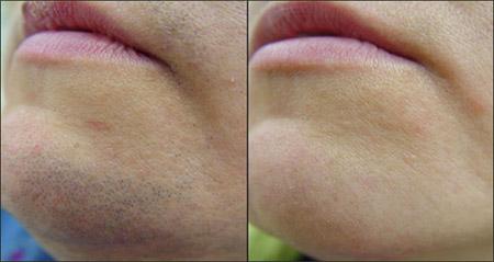 صورة طريقة ازالة شعر الوجه للرجال نهائيا