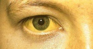 هل تساقط الشعر من علامات العين