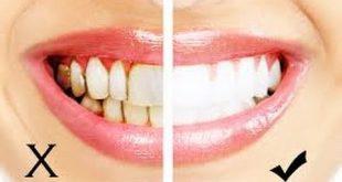 صورة زيت الزيتون لتبيض الاسنان