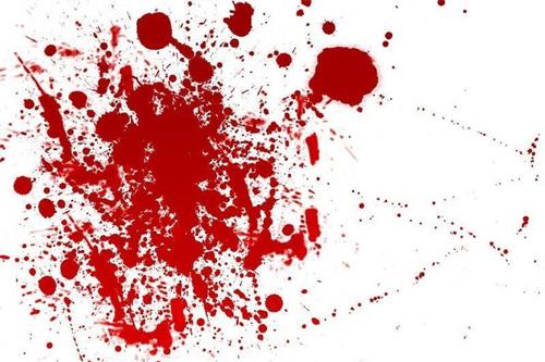 صوره دم في المنام