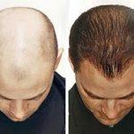 صور علاج تساقط الشعر والقشرة , طرق علاج القشرة وتساقط الشعر