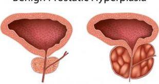 فوائد البروستاتا , عايزة تعرفى البروستاتا مسئولة عن اى فى جسمك هعرفك