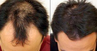 صور افضل علاج لتساقط الشعر عند الرجال