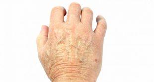 علاج جفاف اليد