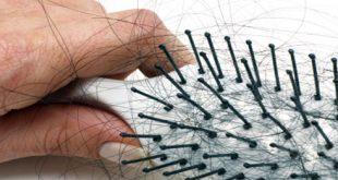 صور وصفات لتساقط الشعر بالثوم