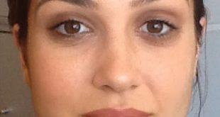 ازالة الهالات السوداء حول العين طبيعيا