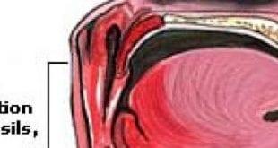 علاج برد الراس