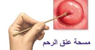 مسحة عنق الرحم مؤلمة