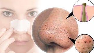صورة علاج النقط السوداء في الوجه