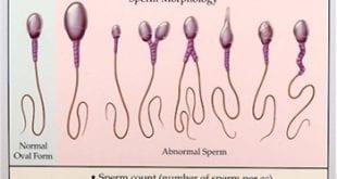 بالصور كيف تخرج الحيوانات المنوية من جسم الانسان 2e5e618cf7c973f487b86efff146cf99 310x165