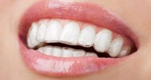 افضل انواع تركيبات الاسنان