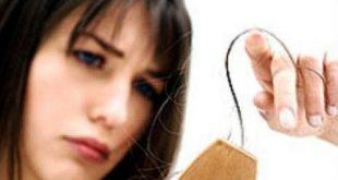 صورة ما هو سبب تساقط الشعر