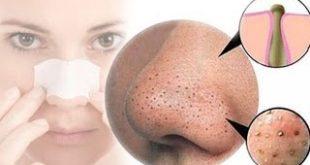 علاج النقط السوداء في الوجه