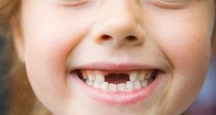 صورة تفسير حلم سن يسقط , رؤيه الاسنان فى المنام