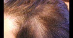 علاج تقصف الشعر الامامي