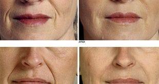 بالصور ترهل الوجه في سن مبكر 78a98ddb88226c08722fd881ebc1b566 310x165