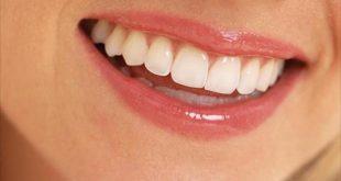 بالصور اسنان جميلة 85830c2c50d5fa53fde35f6fb0cb2bfc 310x165