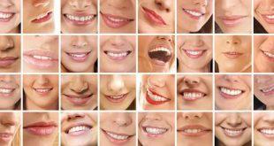 بالصور كيف تبيض الاسنان 85924158e367029421a0a3f8c29fa461 310x165
