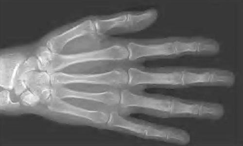 مفصل اليد - افضل كيف
