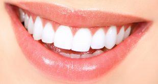 صور تبيض الاسنان في يوم