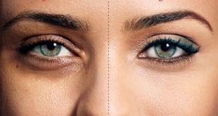 صور وصفات للتخلص من السواد تحت العين
