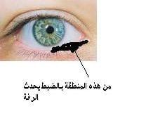 صورة رفة العين الشمال , اسباب رفه العين اليسرى