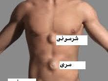 صور علاج الفتق عند الرجال