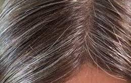 بالصور خلطة لتغطية الشعر الابيض sara 259x165