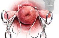 صورة انواع ربط عنق الرحم , جبتلك كل اللى عايزة تعرفية عن ربط عنق الرحم