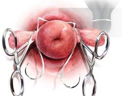 انواع ربط عنق الرحم , جبتلك كل اللى عايزة تعرفية عن ربط عنق الرحم