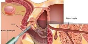 صورة علاج امراض البروستاتا , هعرفك ازاى تعالجى احتقان البروستاتا بسهولة