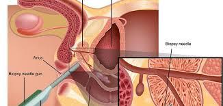 علاج امراض البروستاتا , هعرفك ازاى تعالجى احتقان البروستاتا بسهولة