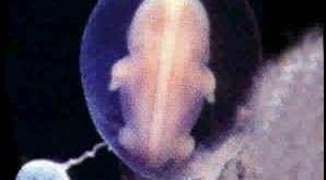 صورة صور الجنين في الشهر الثاني , صورة لطفلك اثناء الشهر الثانى